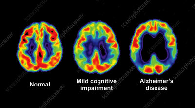 Normal, Impaired and Alzheimer Brains