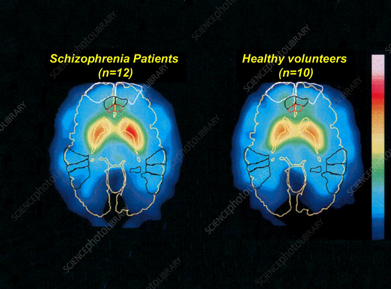 schizophrenia and normal brain  pet scans