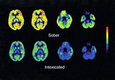 Sober and Intoxicated Brains, PET Scans