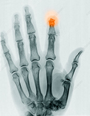 Finger Amputation, X-ray