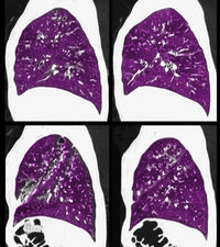 Cystic Fibrosis of the Lungs, CT Scan