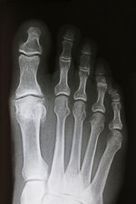 Osteoarthritis of Big Toe, X-ray