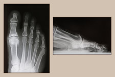 Osteoarthritis of Big Toe, X-rays