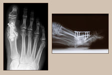 Arthrodesis Operation, X-rays