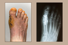 Foot 20 Days Post-Arthrodesis Op