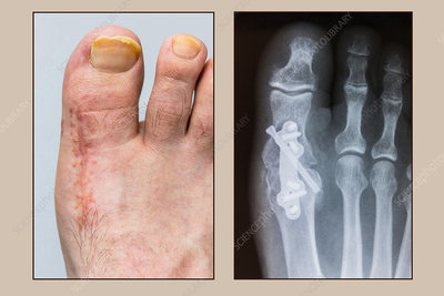 Foot 10 Weeks Post-Arthrodesis Op