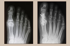 Foot, Pre- and Post-Arthrodesis Op.