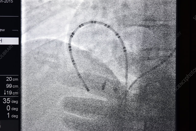 Cardiac ablation surgery, heart X-ray