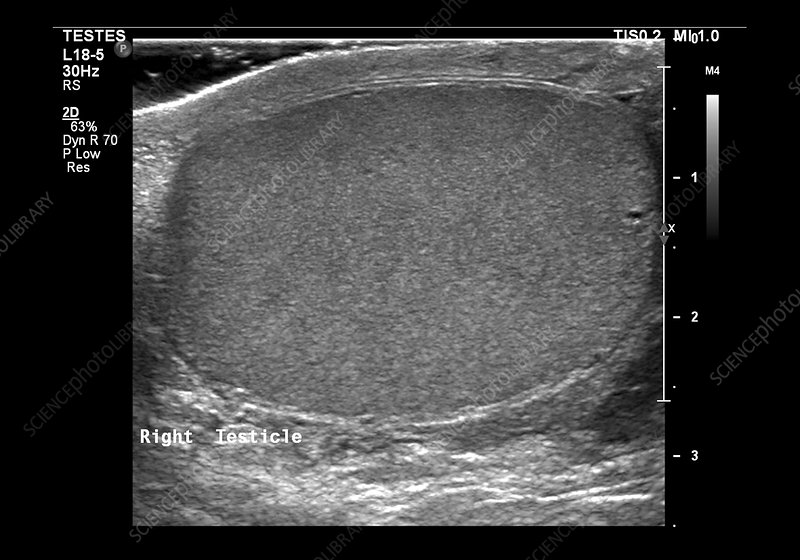 Normal testicle, ultrasound scan