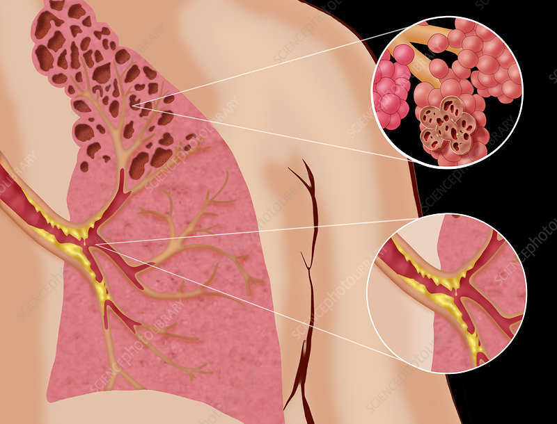 Chronic Pulmonary Disease, Illustration