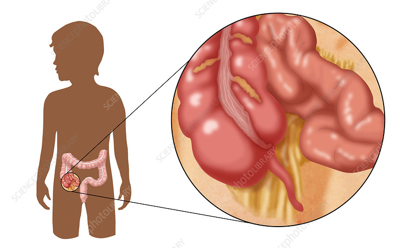 Normal Appendix, Illustration