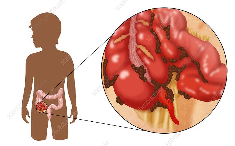 Ruptured Appendix, Illustration - Stock Image C027/6230 - Science ...
