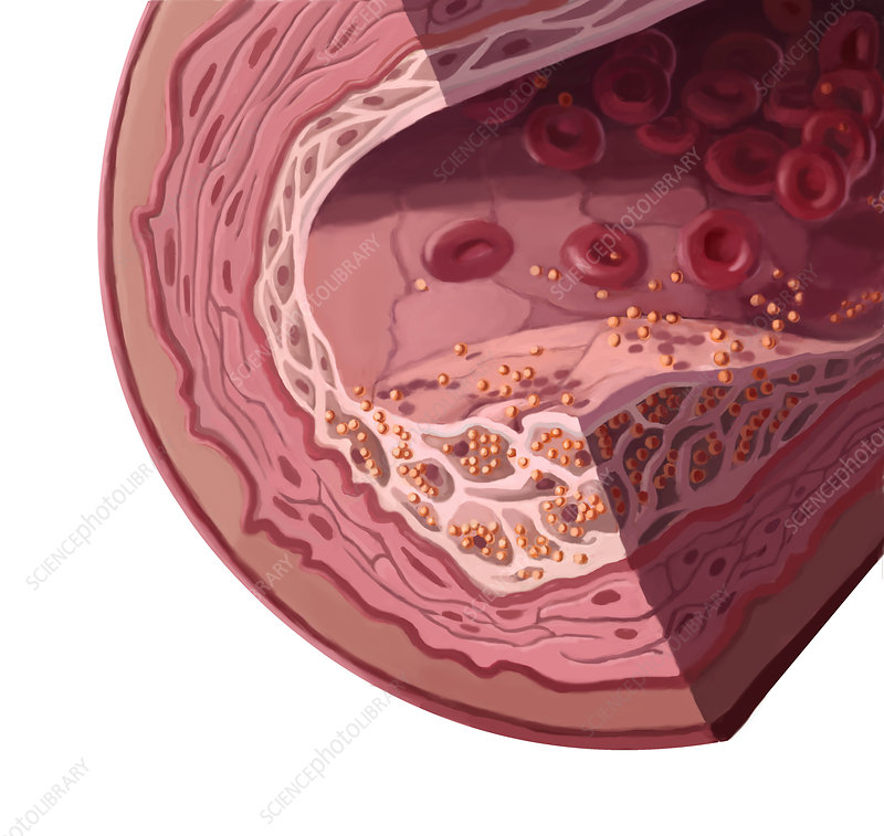Cholesterol, Illustration
