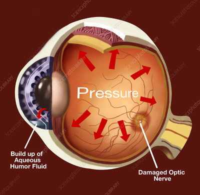 Glaucoma, Illustration