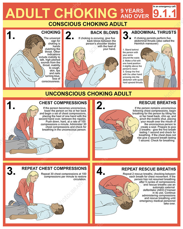Choking First Aid Chart, Illustration