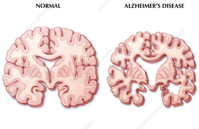 Alzheimer's Disease Brain, Illustration