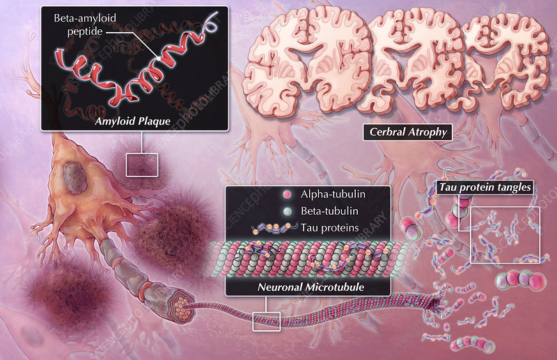 Alzheimer's Pathology, Illustration