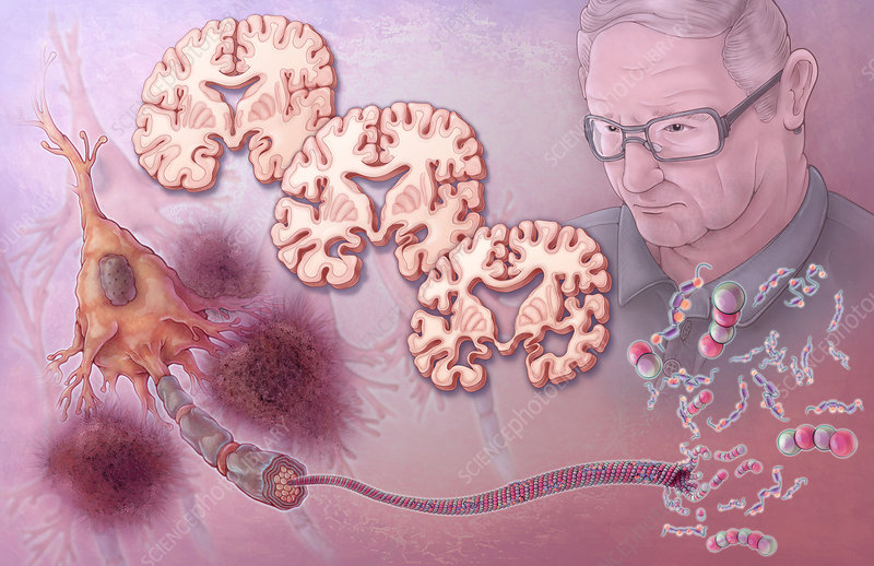 neuropathological disorders There are many neuropathological disorders that plague people all over the world these brain disorders may be simple and treatable, such as mood disorders.