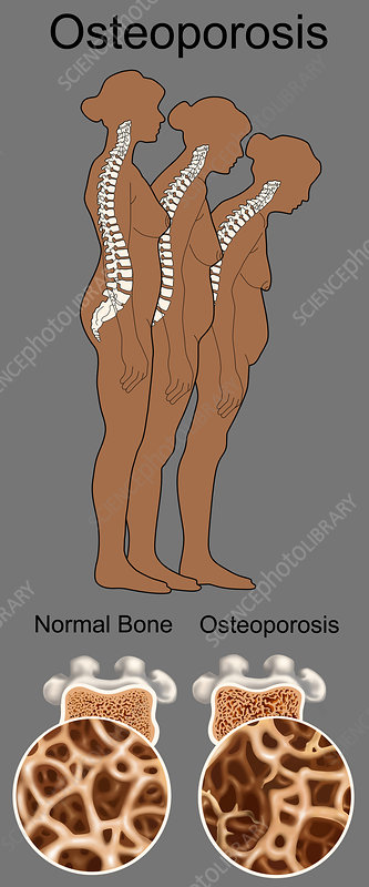 Osteoporosis, Illustration