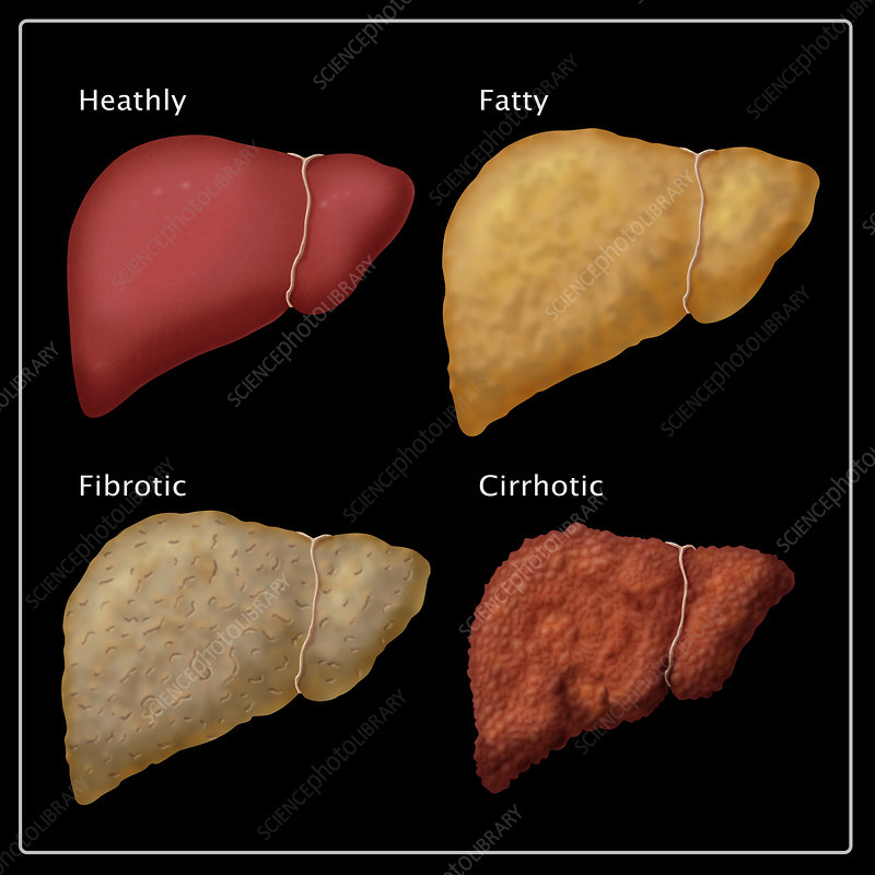 Stages of Liver Damage, Illustration