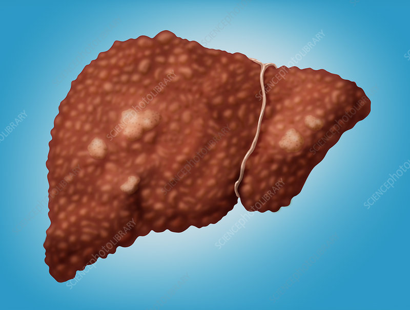 Hepatocellular Carcinoma, Illustration