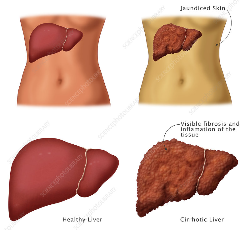 Healthy vs. Cirrhotic Liver, Illustration