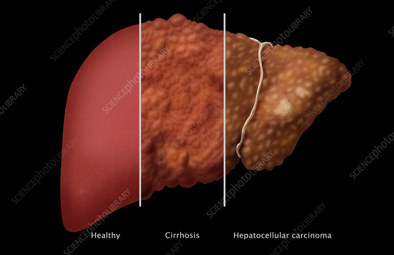 Liver Comparison, Illustration