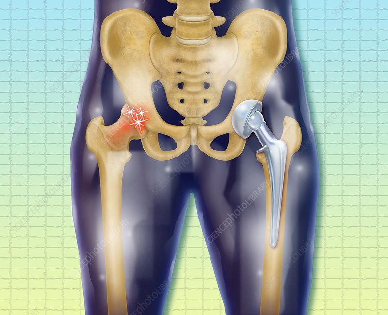Replacement Hip, Illustration