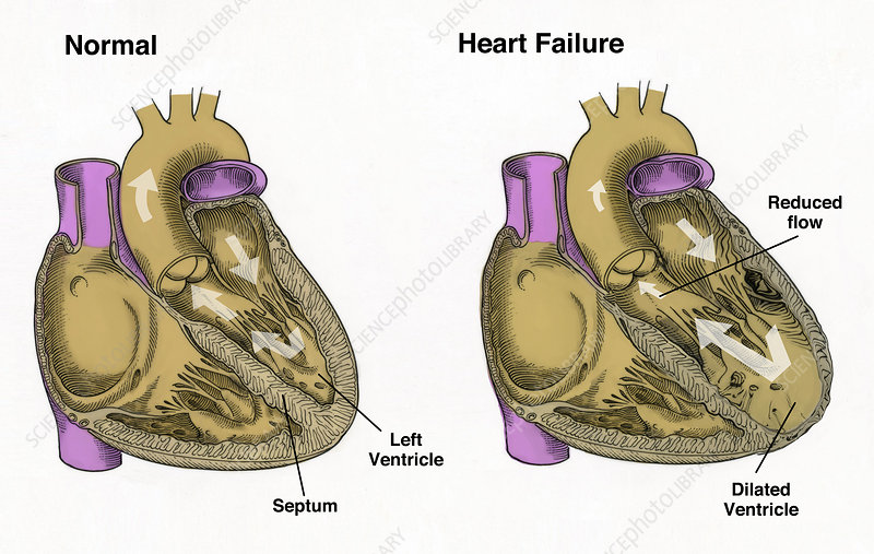 Healthy and Failure Hearts, Illustration