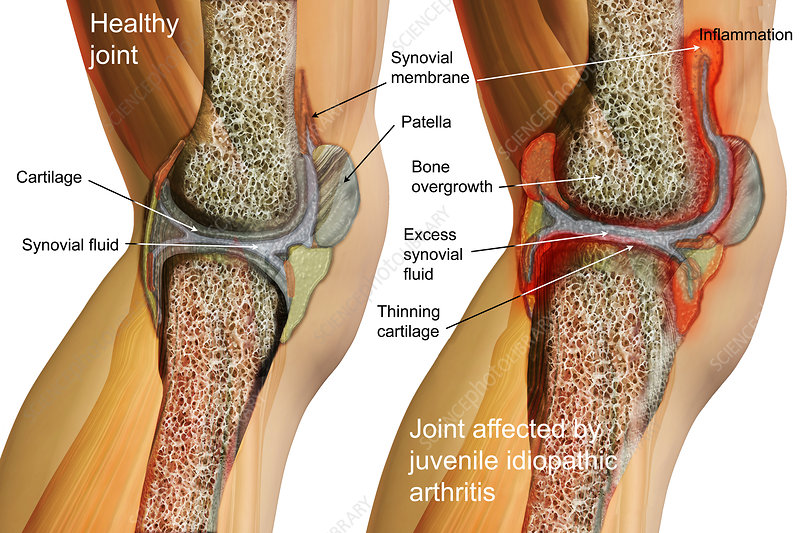 Systemic Juvenile Arthritis, Illustration