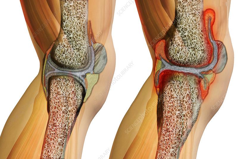 Systemic Juvenile Arthritis, Illustration