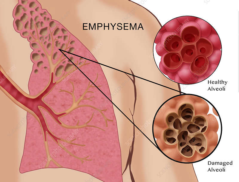 Emphysema, Illustration