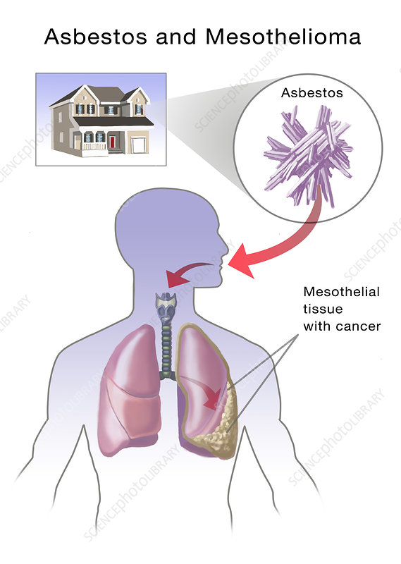 Asbestos and Mesothelioma, Illustration