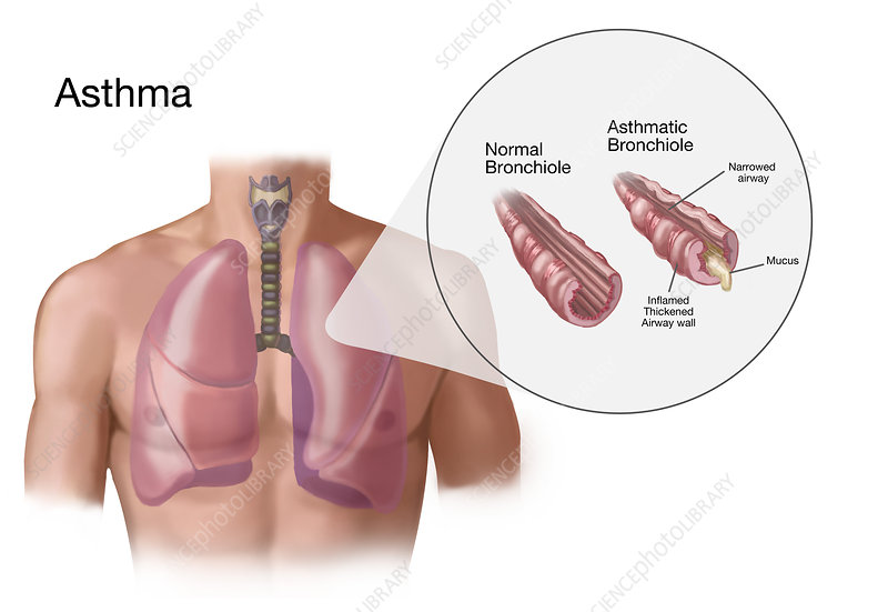 Asthma and Bronchioles, Illustration