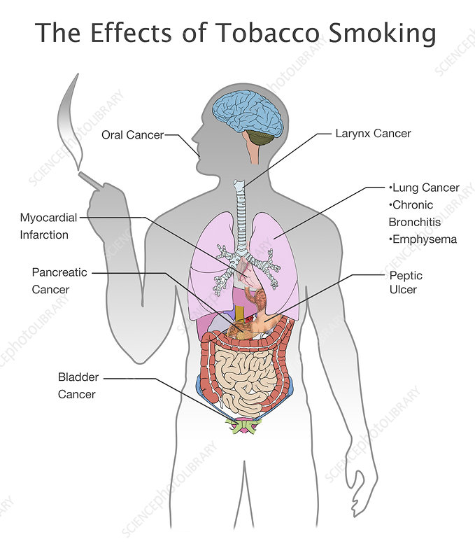 Effects of Tobacco Smoking, Illustration