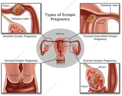 Ectopic Pregnancy, Illustration