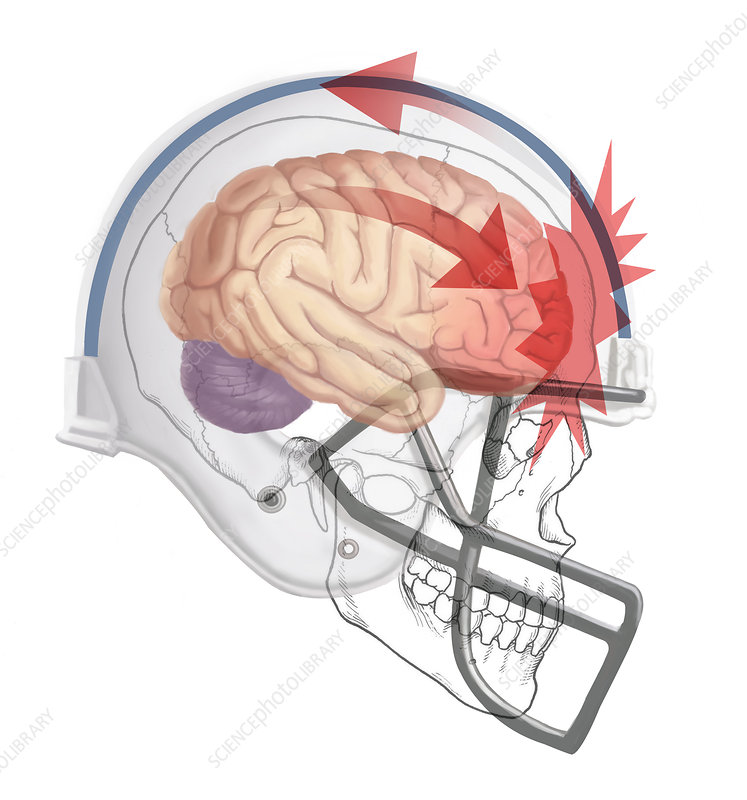 Concussion, Illustration - Stock Image C027/6689 - Science Photo Library
