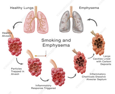 Lung Damage and Emphysema, Illustration