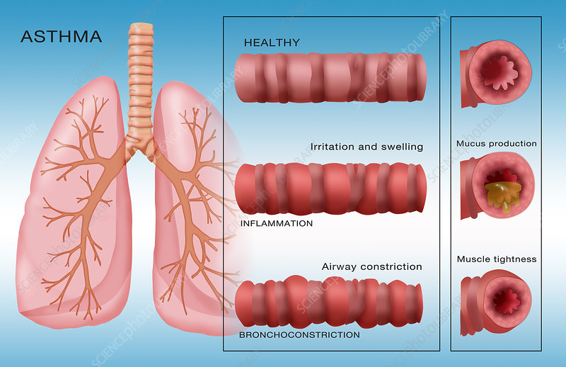Bronchoconstriction, Asthma, Illustration
