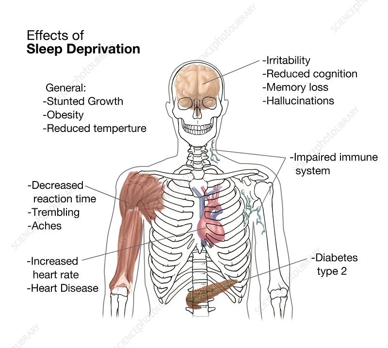 Sleep Deprivation Effects, Illustration