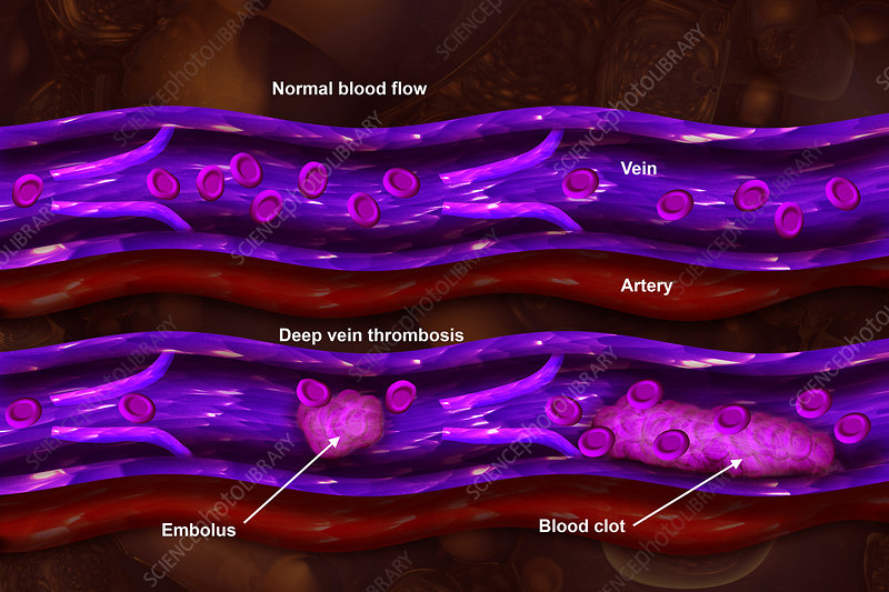 Deep Vein Thrombosis, Illustration