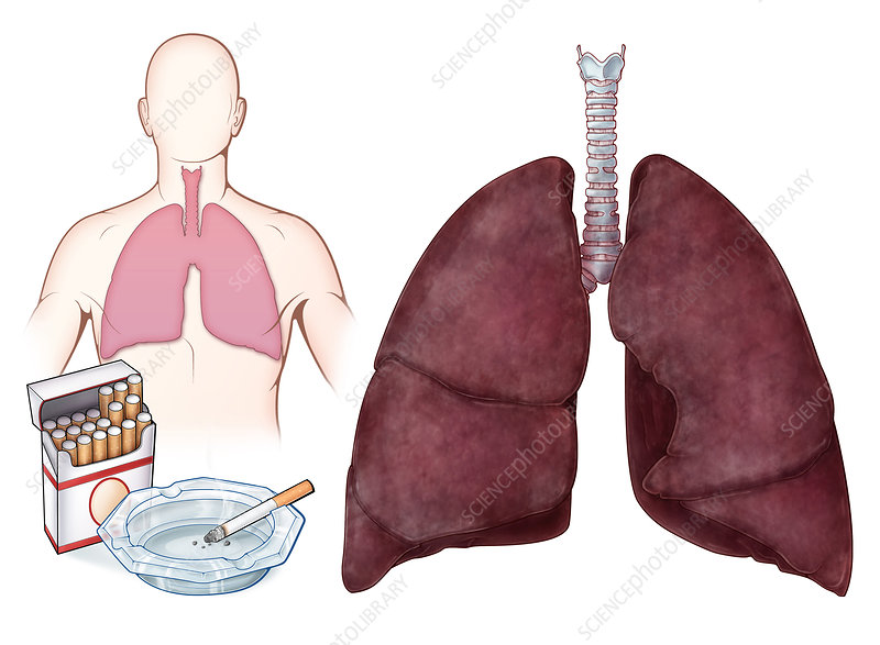 Effects of Smoking, Illustration