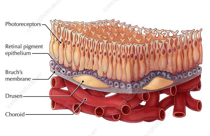 Dry AMD, Illustration