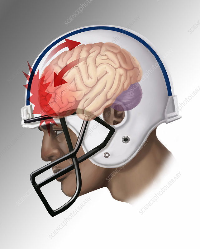 Concussion, Illustration