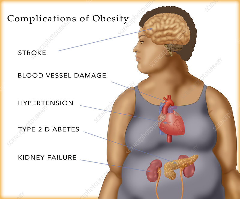 Complications of Obesity, Illustration