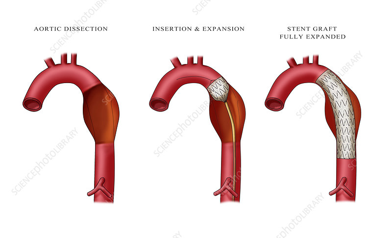 Aortic Aneurysm Stent, Illustration