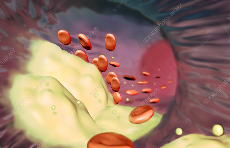 Clogged Artery, Illustration