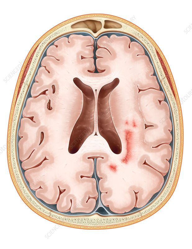 Multiple Sclerosis, Illustration