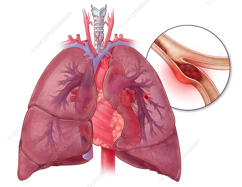 Pulmonary Embolism, Illustration