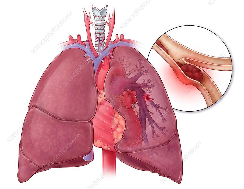 Pulmonary Embolism, Illustration - Stock Image - C027/7044 ...